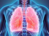 IA lesions pulmonaires